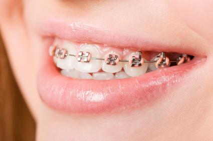 Traumdeutung Zähne
